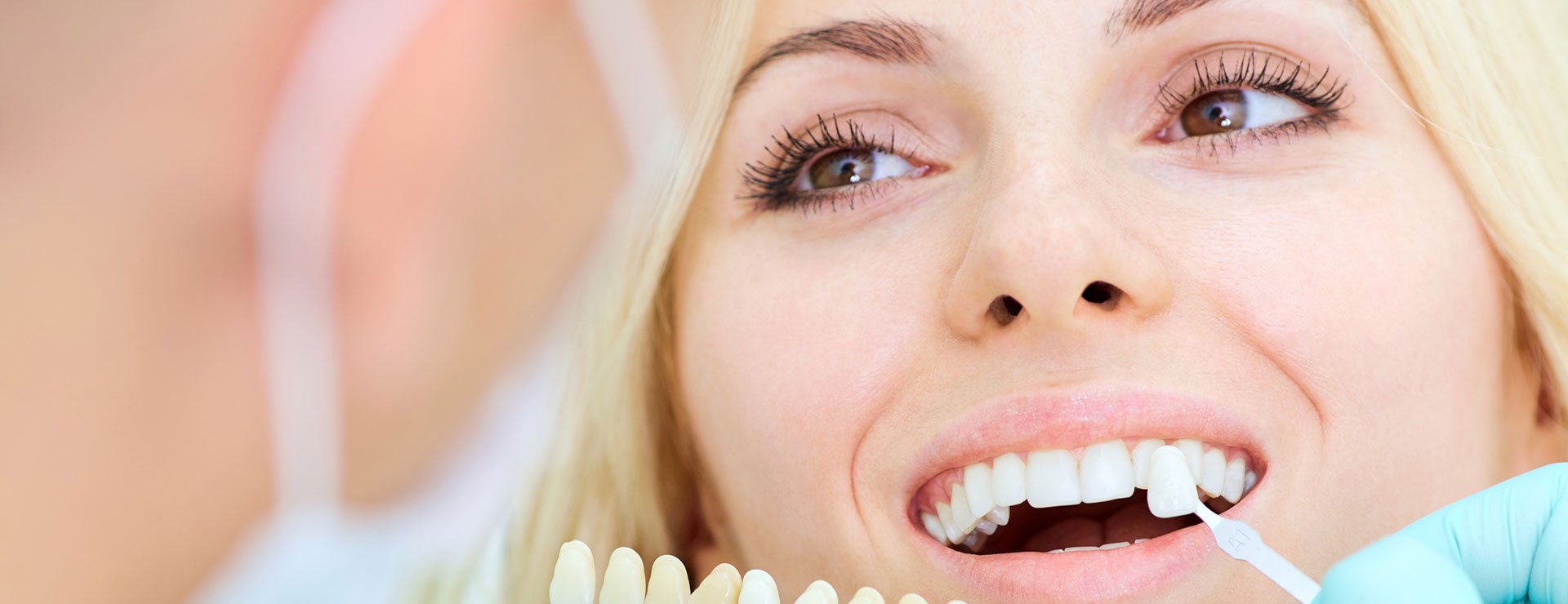 Dentist matching veneer with a patient